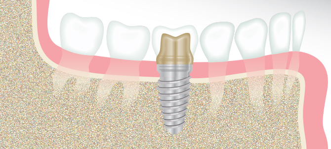 Dental Implant Illustration - Winston-Salem Dentist