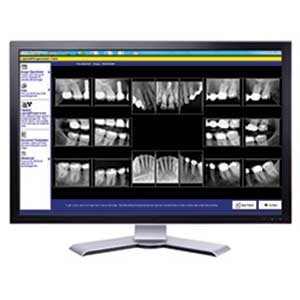 Dental X-rays - Winston-Salem Dentist